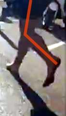 Angle du genou